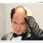 斎藤さん(トレンディエンジェル)の月収が1000万超え!たかしの年収は?