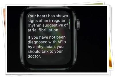 Apple Watch16