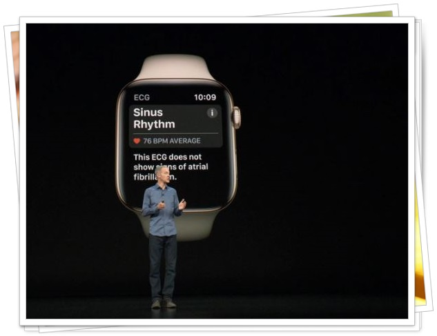Apple Watch18